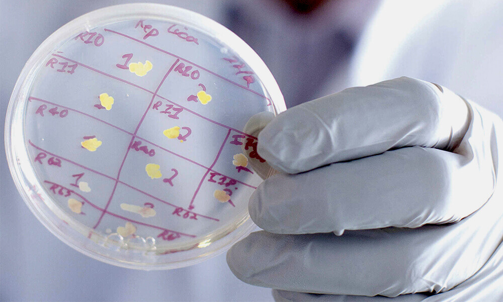 Micro Nebulización